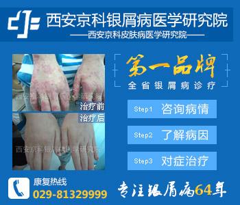 西安专门治疗牛皮癣医院
