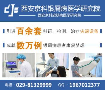 西安什么医院能治疗银屑病